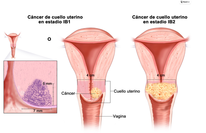 cancer-cérvicouterino.alt