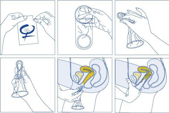 como-se-usa-el-condon-femenino-alt