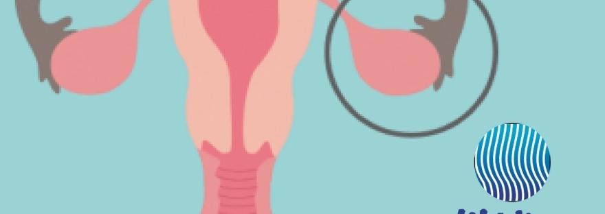 Ovarios_ 5 cosas que debes saber