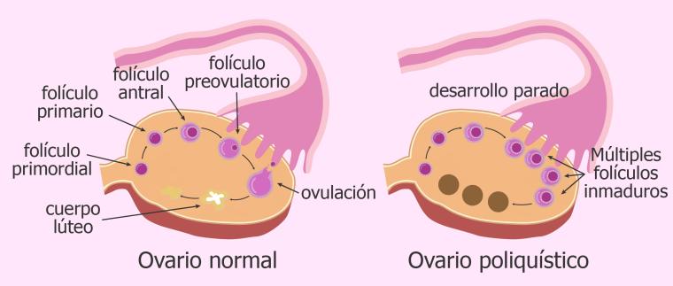 ¿Aquése lo conoce como ovariopoliquístico?