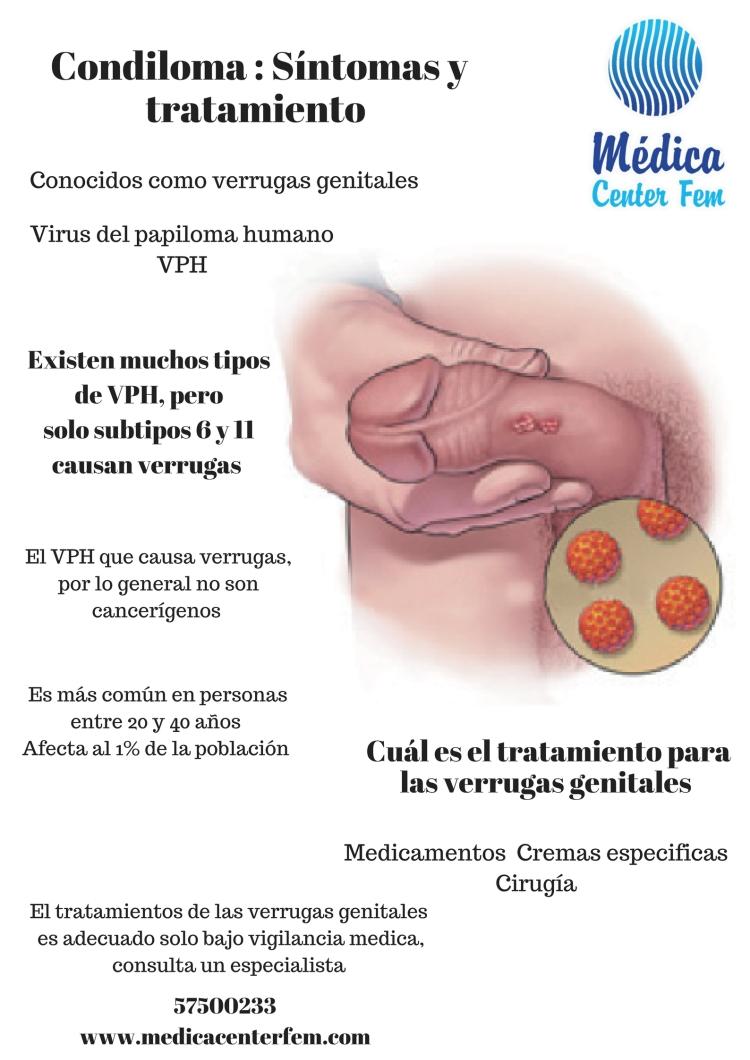 Condiloma _ Síntomas y tratamiento