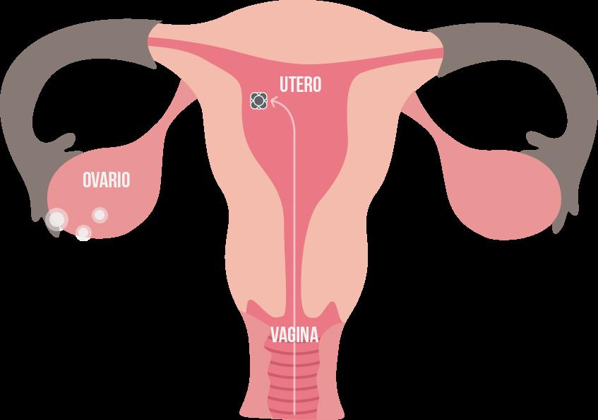 enfermedades del aparato reproductor femenino