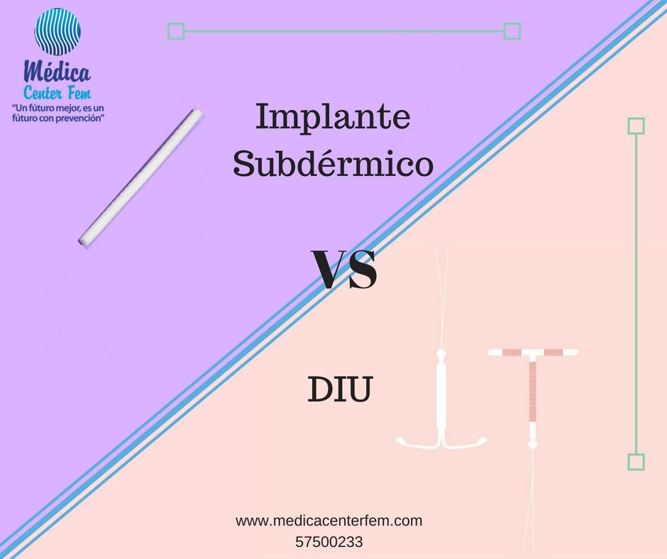implante vs diu