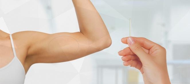 Implante-subdermico.