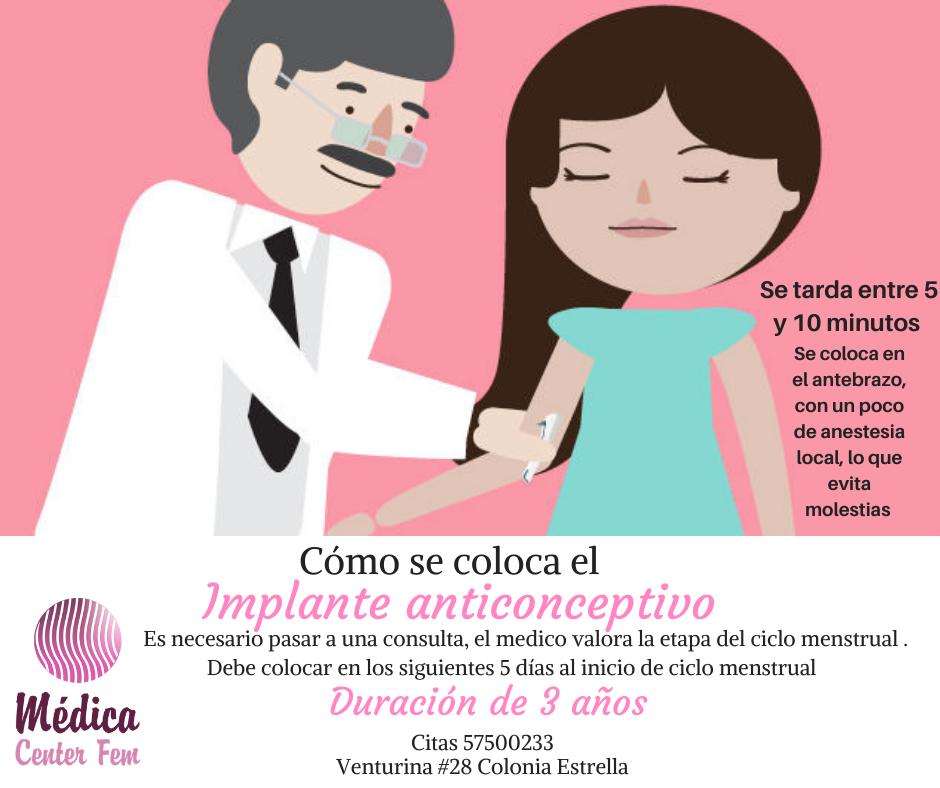 implante-anticonceptivo